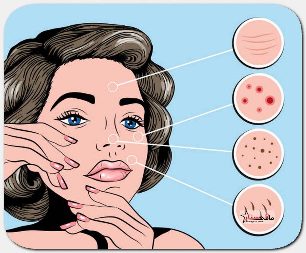 acne face