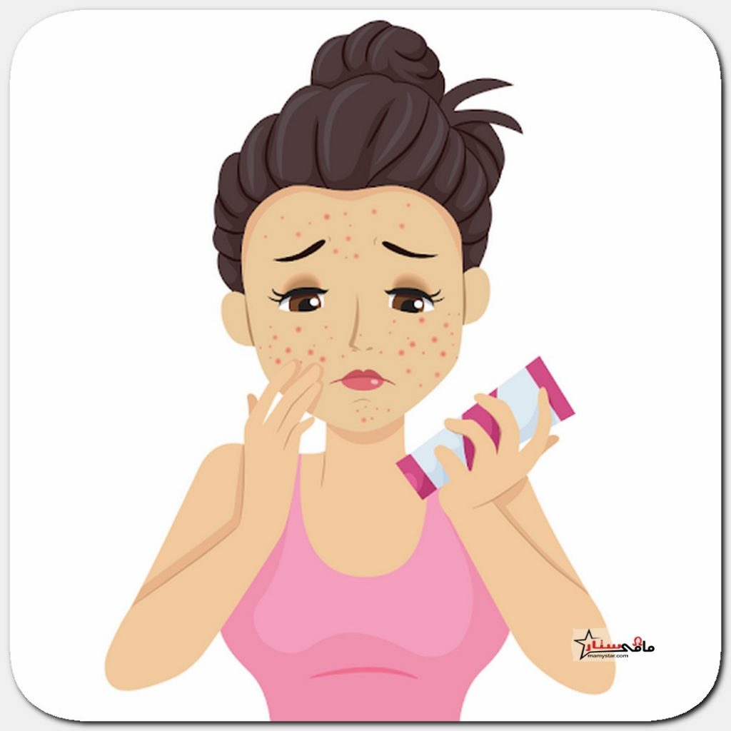 best acne scar treatment