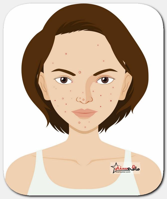 comedonal acne treatment