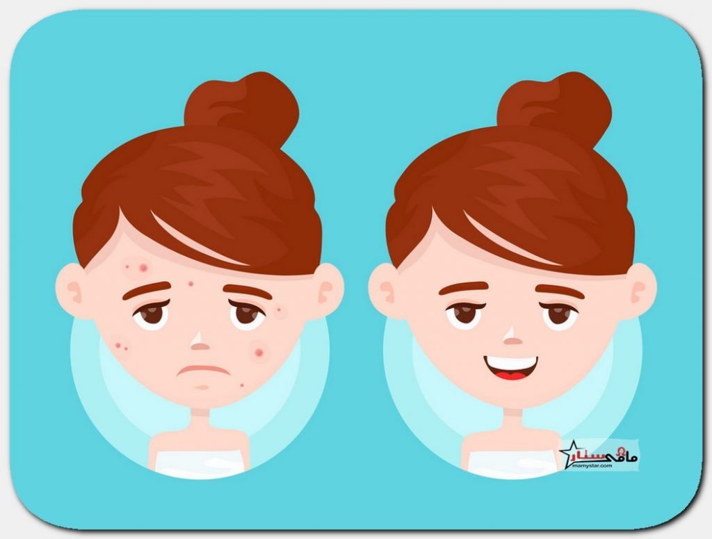 cystic acne causes